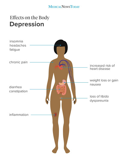 picture of a graph of symptoms pertaining to Depression